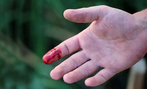 Tác dụng của ngải cứu giúp cầm máu