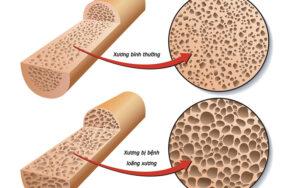 Vai trò của Canxi trong hệ cơ xương