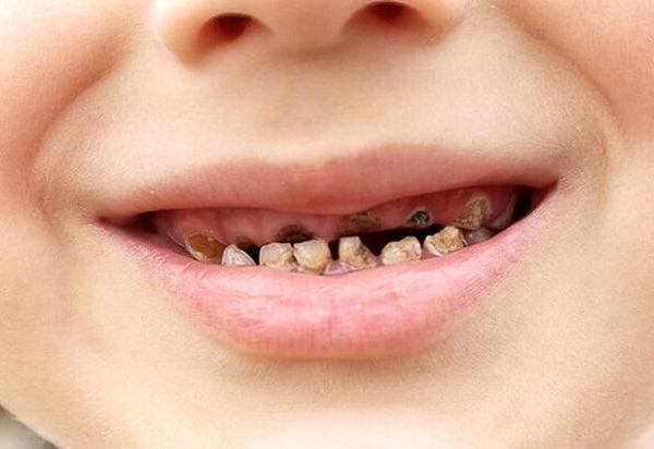 Bệnh sún răng ở trẻ